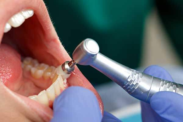 Closeup of professional dental cleaning